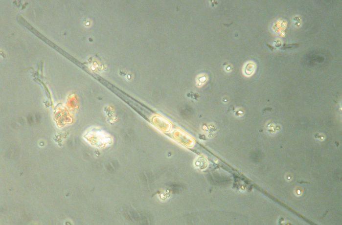 Closterium setaceum