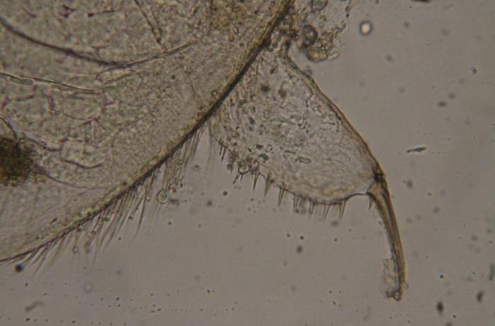 Freshwater Zooplankton Analysis 1